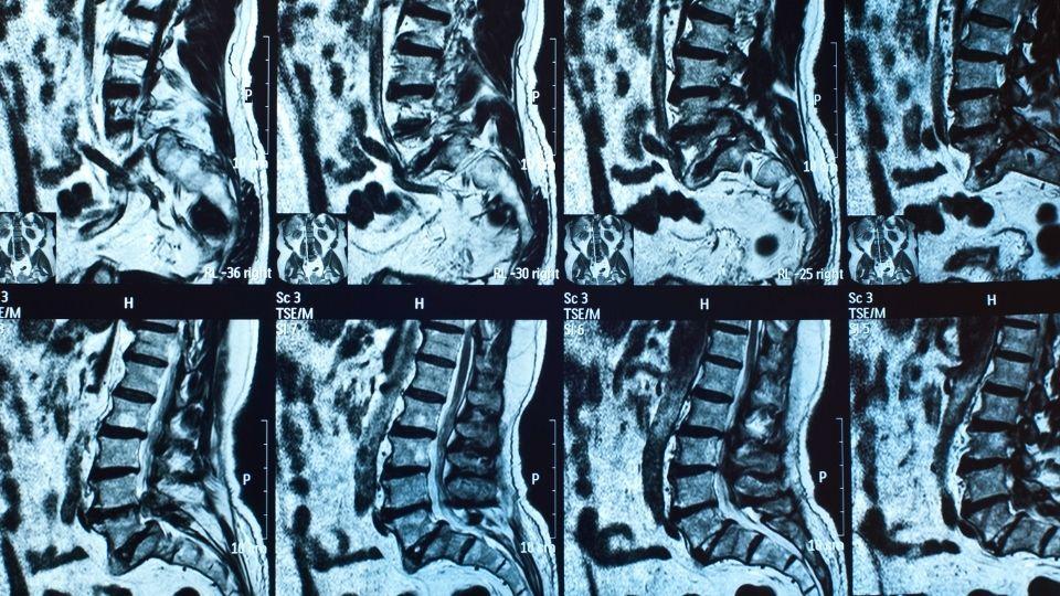 MRI herniated disc