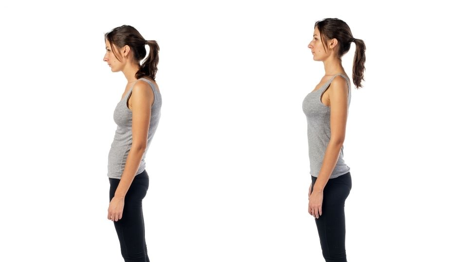 Woman before and after lordosis spine